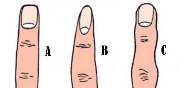 Forma degetelor