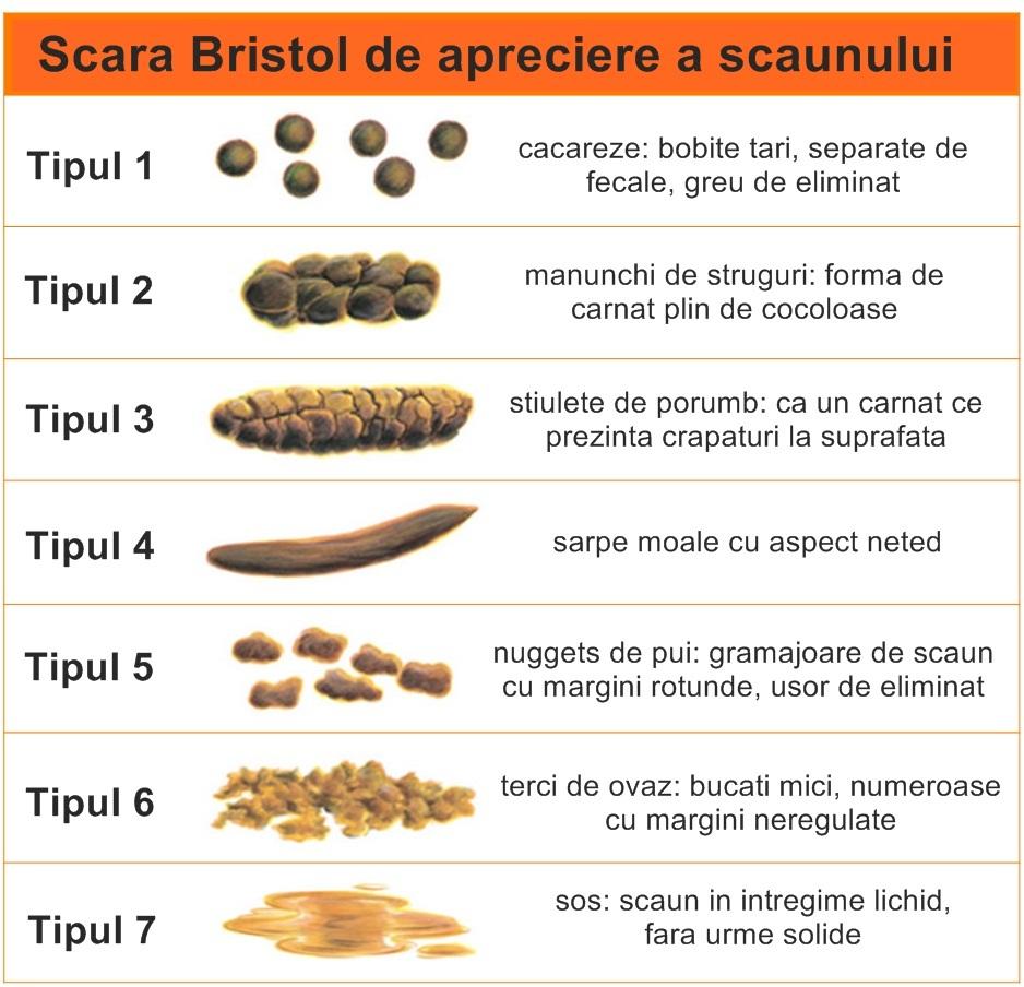 scara-bristol