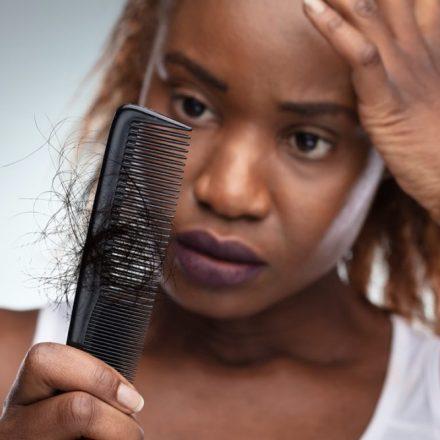 Top 5 motive pentru pierderea părului