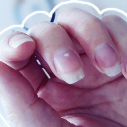 Ce spun aceste 8 texturi ale unghiilor despre sanatatea ta!