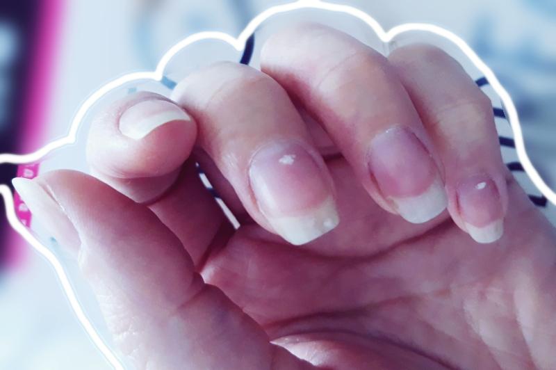 pierdere în greutate unghii fragile